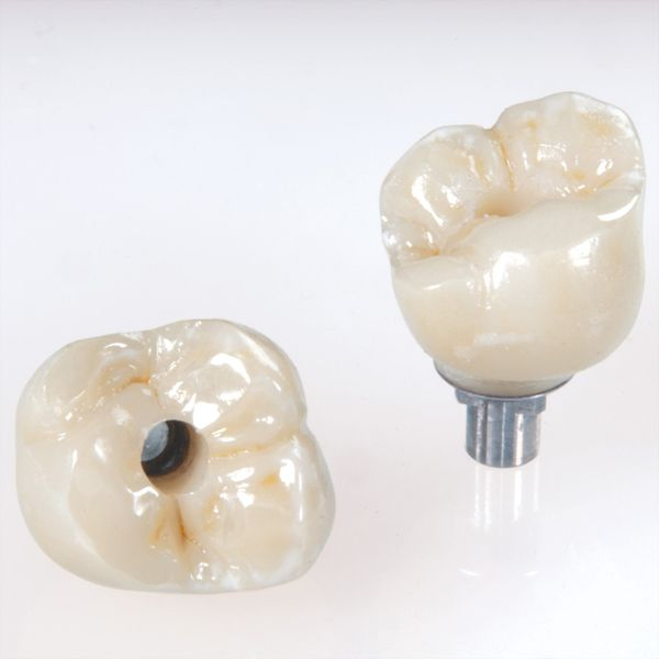 Corona-sobre-implante-4-Pedro-Diaz_1