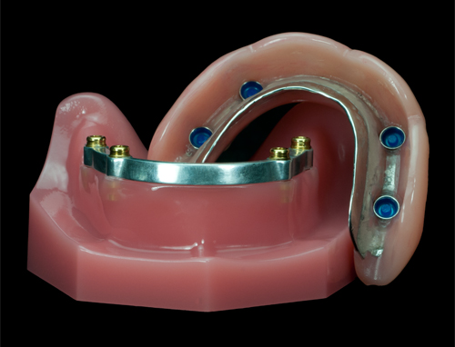 Denture over locatore-Bar