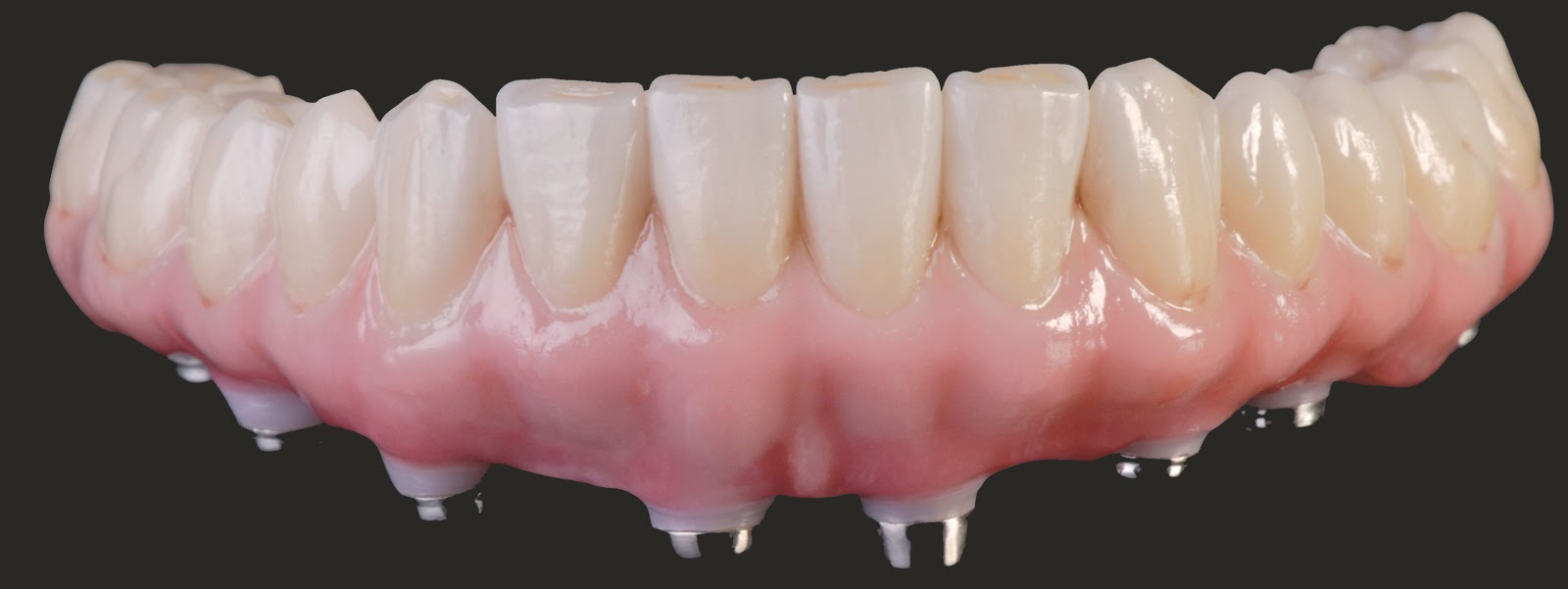 Prettau+Bridge. Full Conture Zirconia