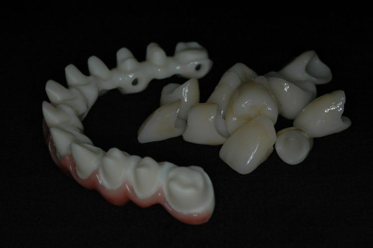 Zirconia Substructure with Individual Crownes