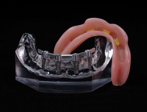 denture over Hader Bare